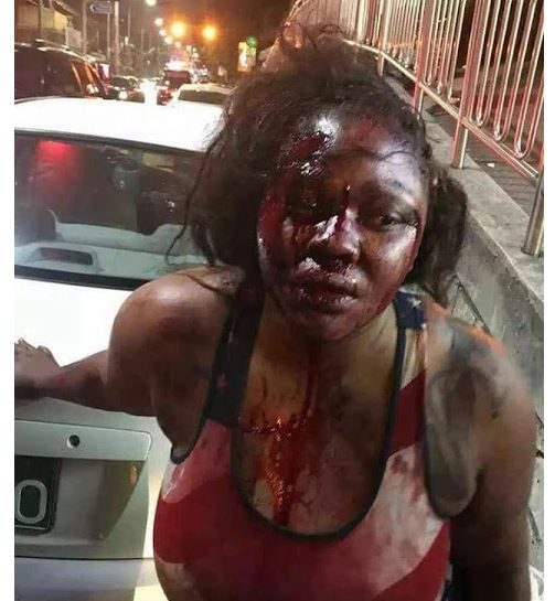 Liberian Woman Mercilessly Beaten Up By Fiancé In South Korea (Photos)