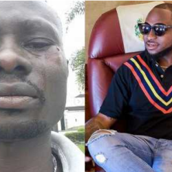 Man recounts how he was battered by Davido's boys, in Lekki, Lagos